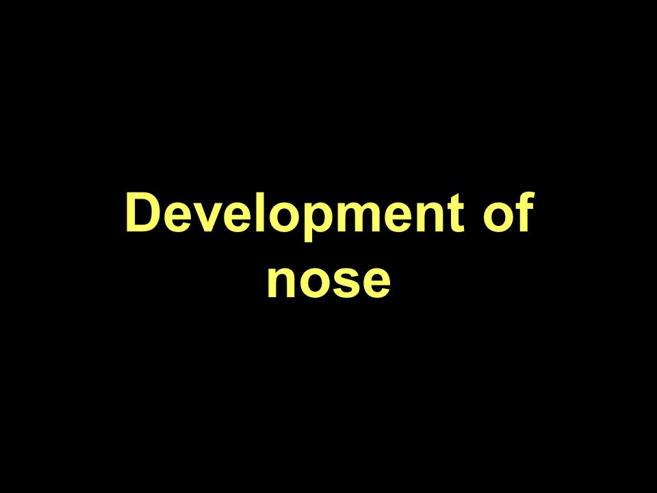 Anatomy Of Nose Paranasal Sinuses Ppt Video Online Download