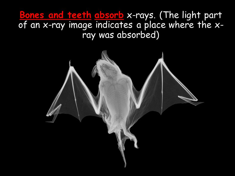 Bones and teeth absorb x-rays