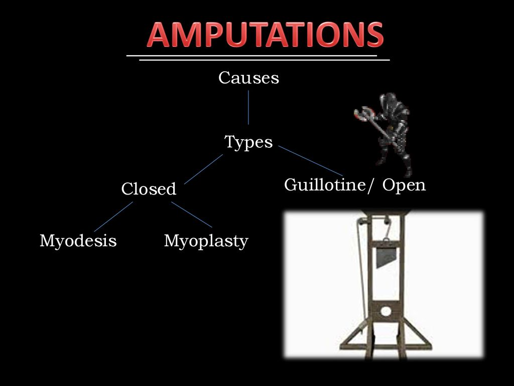 AMPUTATIONS Causes Types Guillotine/ Open Closed Myodesis