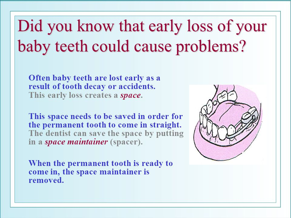 Did you know that early loss of your baby teeth could cause problems