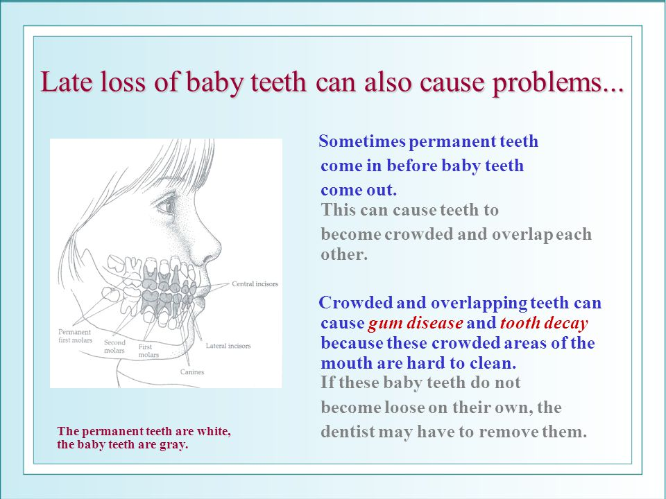 Late loss of baby teeth can also cause problems...