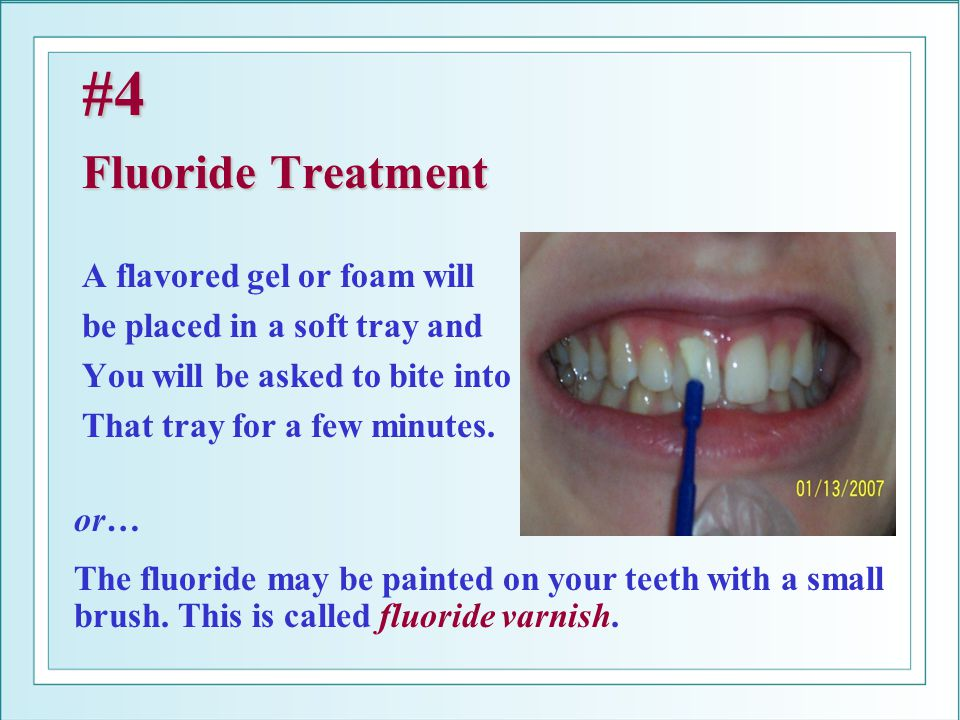 #4 Fluoride Treatment A flavored gel or foam will