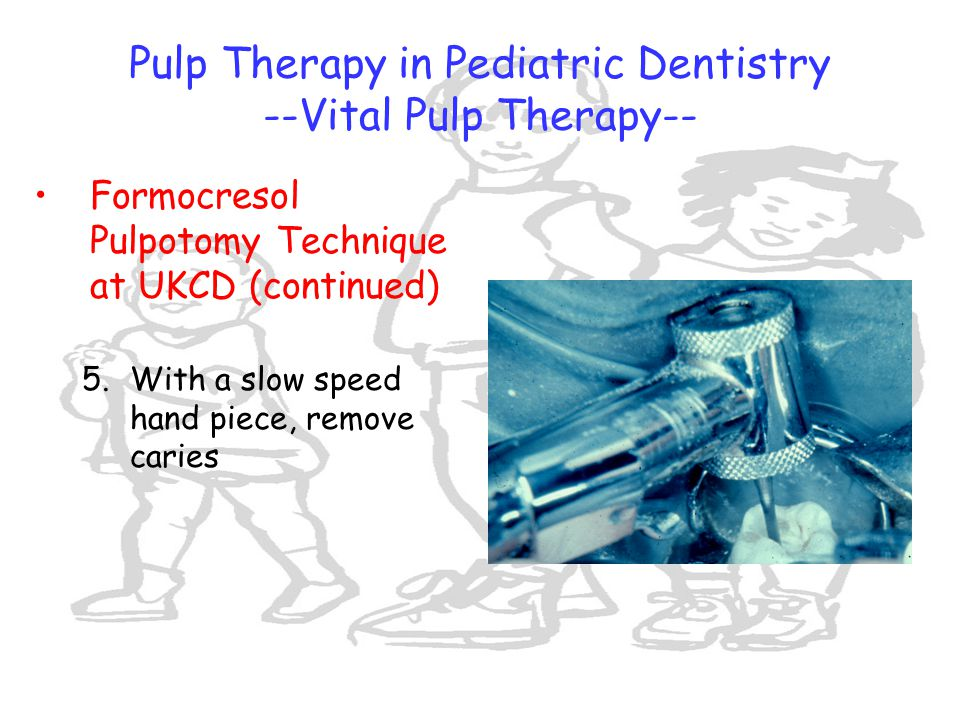 pulp therapy in pediatric dentistry pdf
