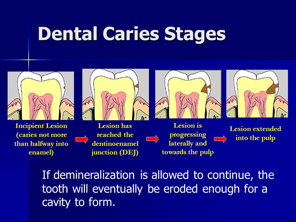 Dental Caries Stages Incipient Lesion. (caries not more than halfway into enamel) Lesion has reached the dentinoenamel junction (DEJ)