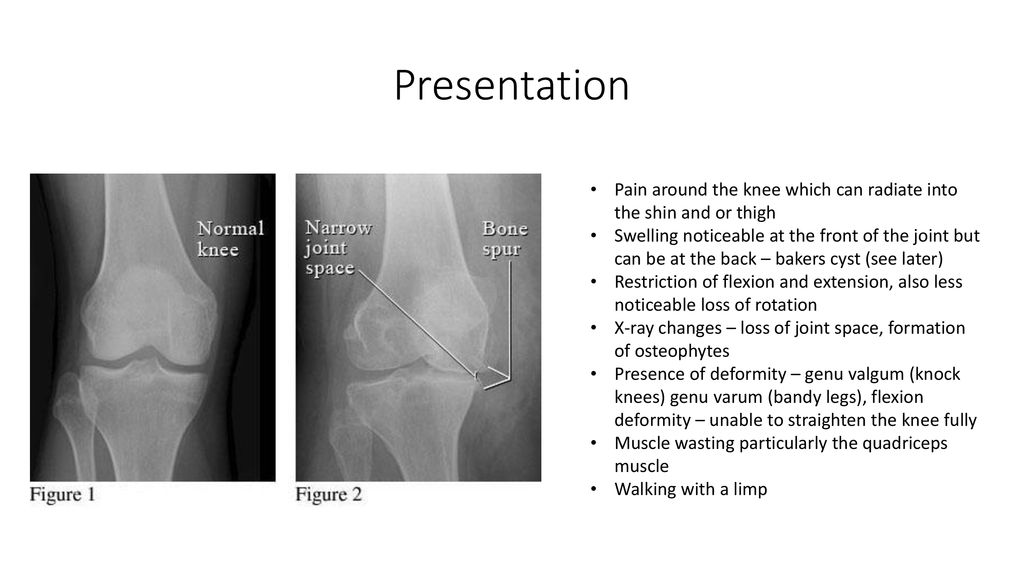 Session 3 The Knee Anatomy of the knee Biomechanics – how it