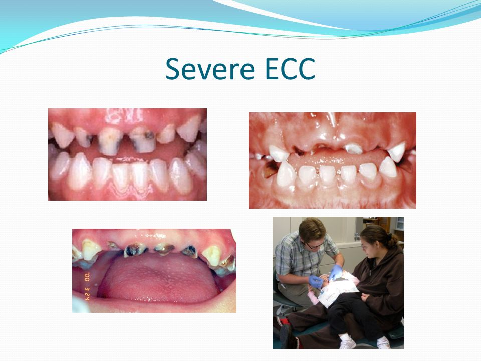 Severe ECC All too often I see ECC left untreated, allowing the teeth to continue to decay until there is little tooth structure left.