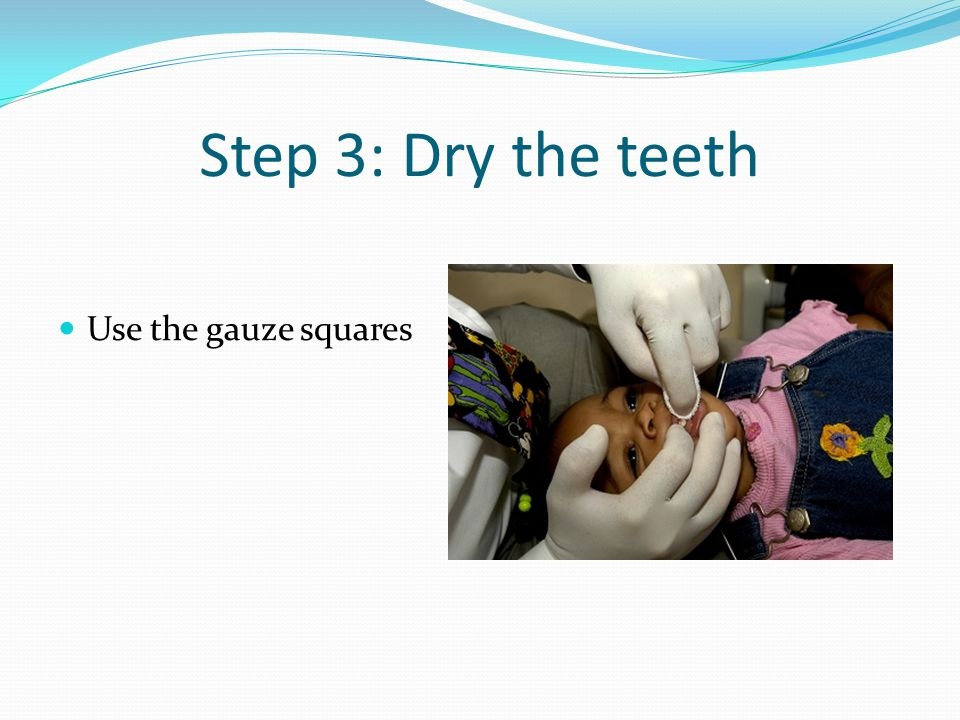 Step 3: Dry the teeth Use the gauze squares