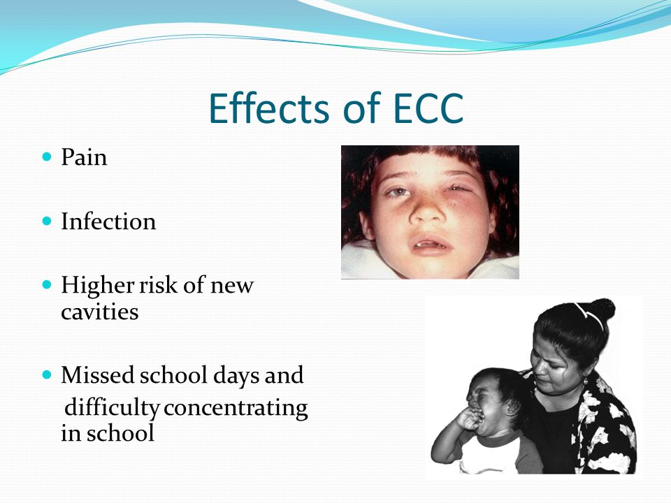 Effects of ECC Pain Infection Higher risk of new cavities