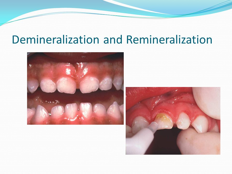 Demineralization and Remineralization
