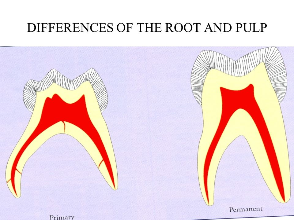 DIFFERNCES BETWEEN DECIDUOUS AND PERMANENT TEETH  - ppt