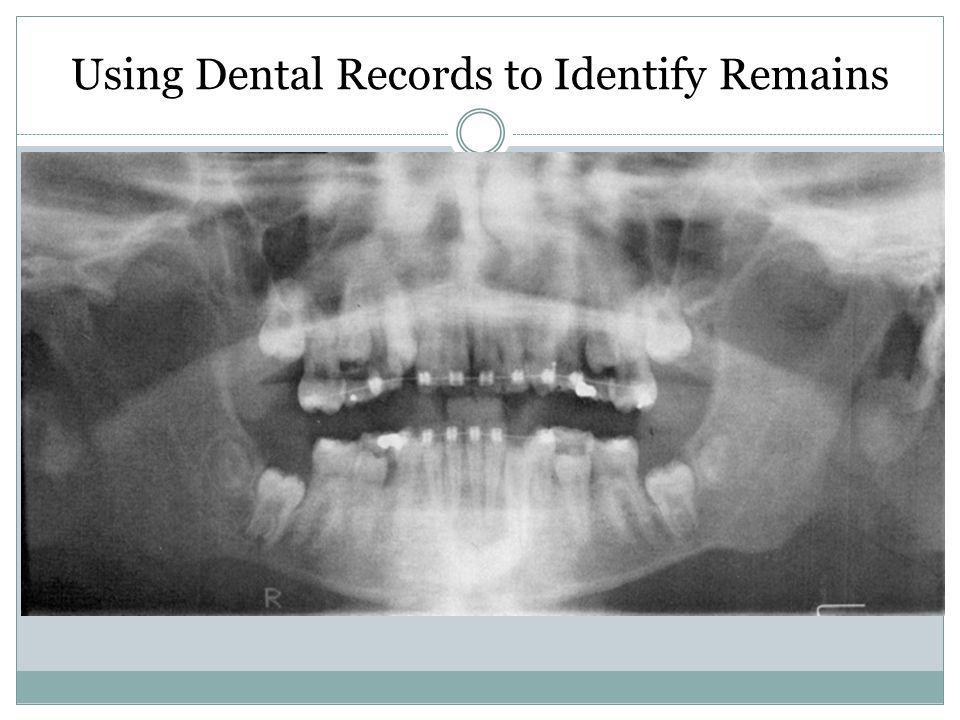 Using Dental Records to Identify Remains