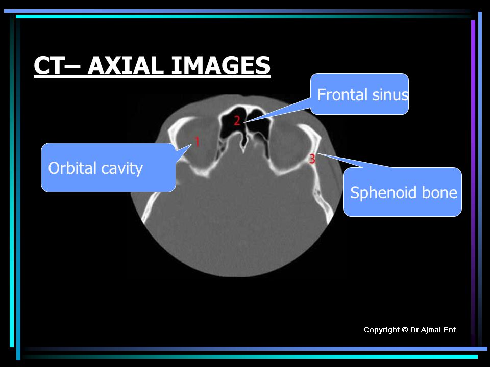 CT. Scan ANATOMY of PARANASAL SINUSES Professor Dr.Muhammad Ajmal ...