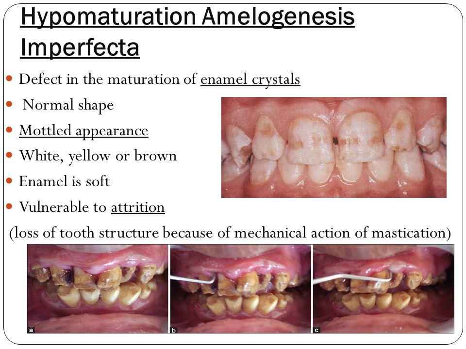 hypomaturation amelogenesis imperfecta