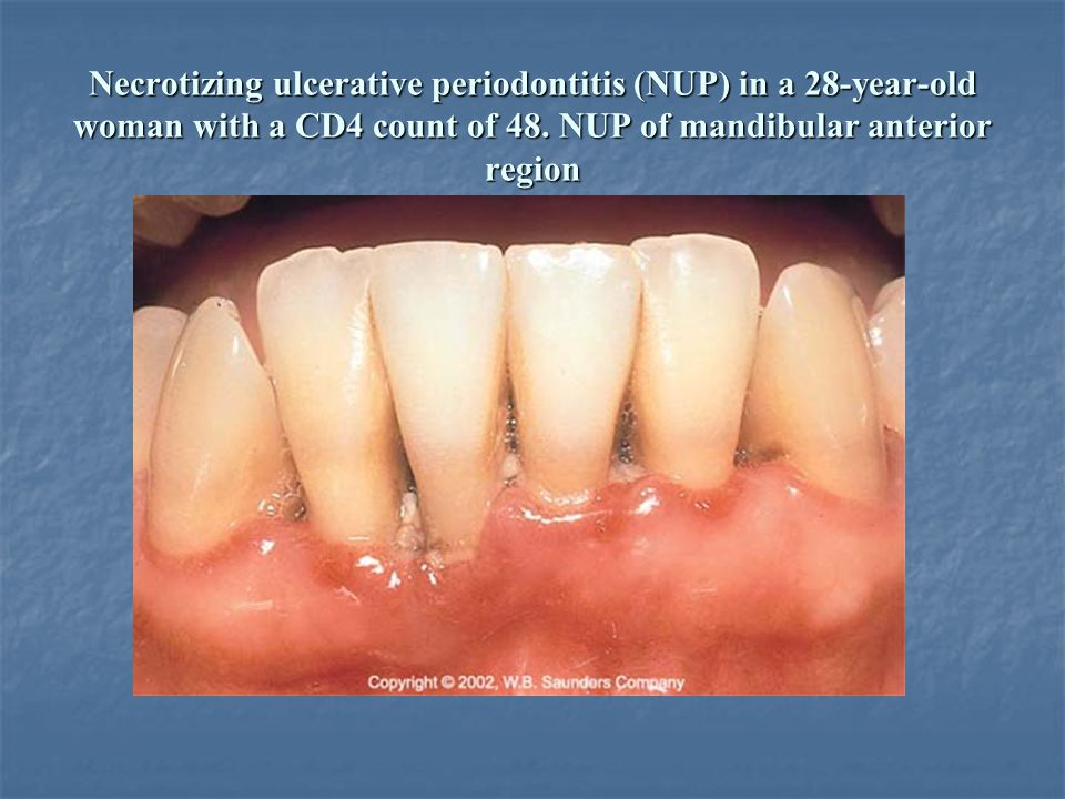 acute necrotizing ulcerative periodontitis pdf