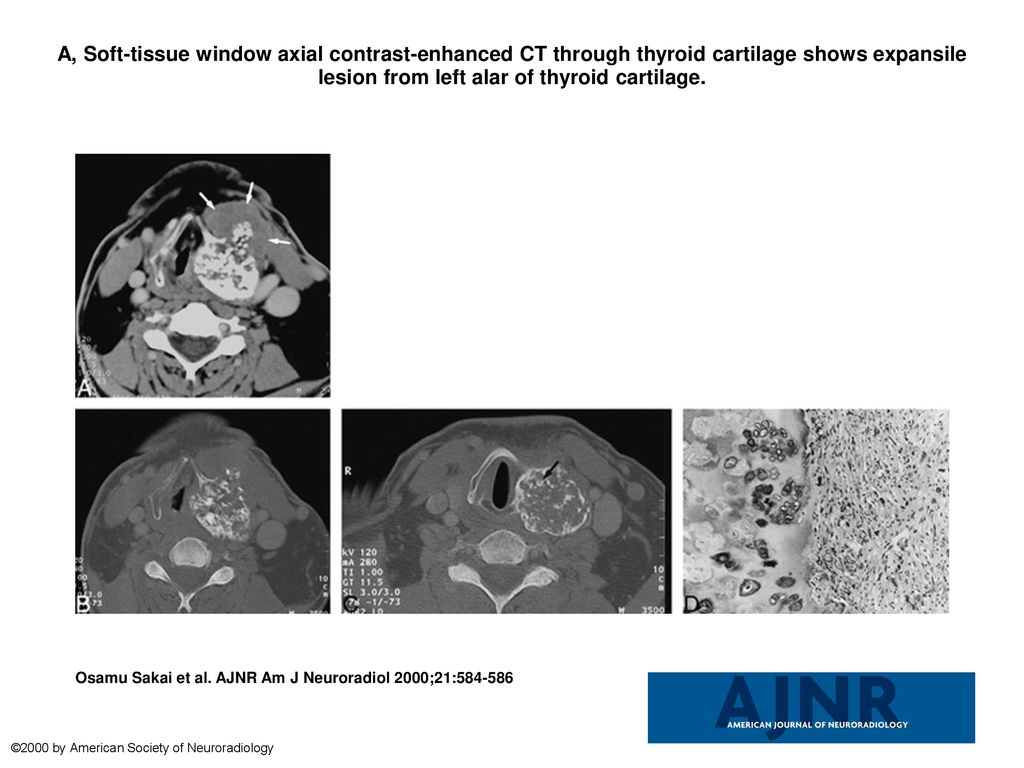 A Soft Tissue Window Axial Contrast Enhanced Ct Through Thyroid