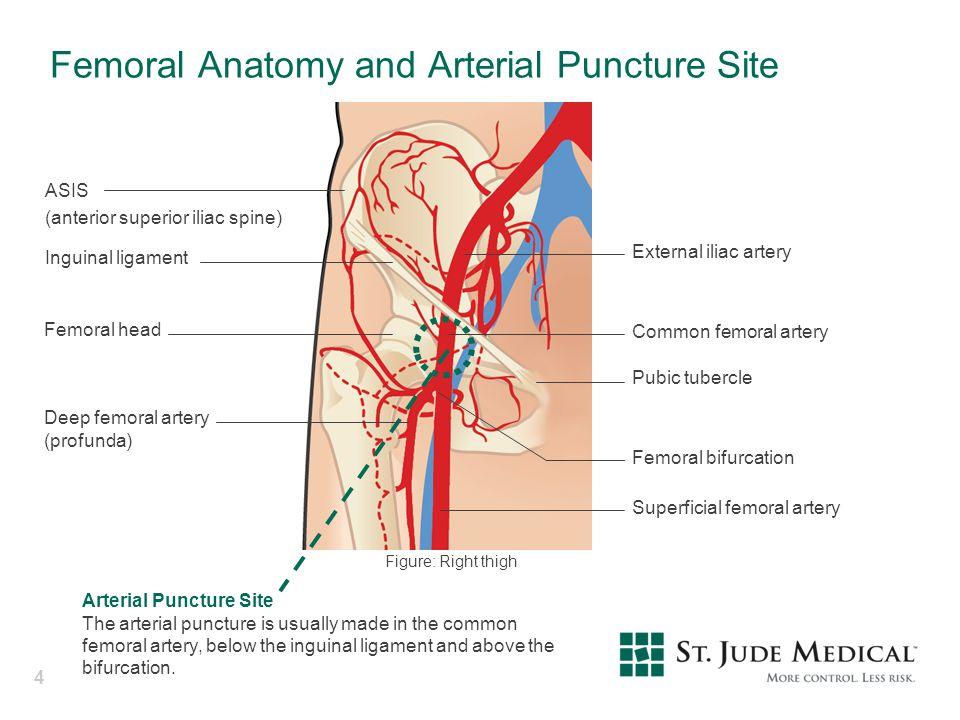 Modern Profunda Femoris Artery Anatomy Pictures - Anatomy And ...