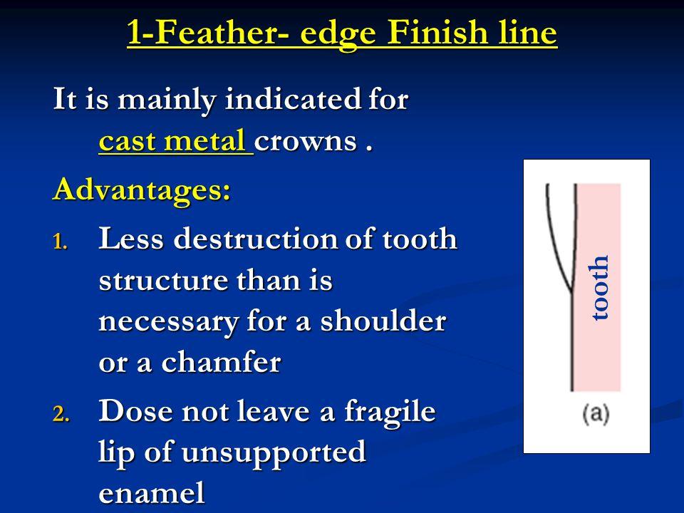 Margin Finish Line Placement Ppt Video Online Download