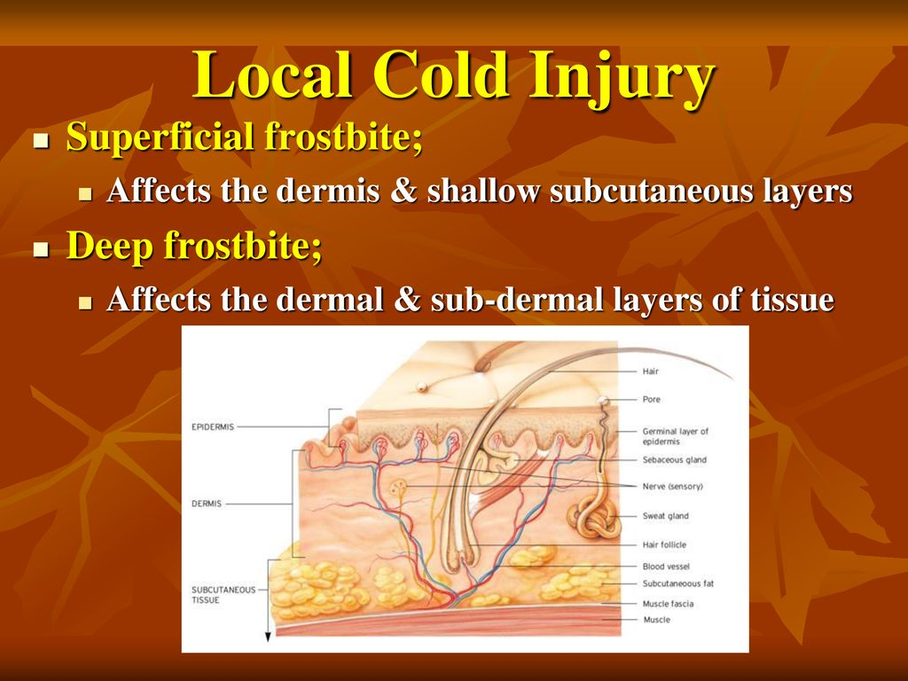 local cold injury superficial frostbite