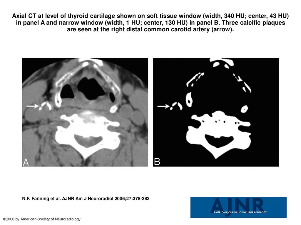 Axial Ct At Level Of Thyroid Cartilage Shown On Soft Tissue Window