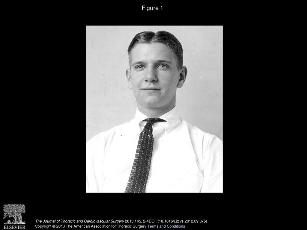 Historical Perspectives Of The American Association For Thoracic Surgery John W Strieder Cameron D Wright Md The Journal Of Thoracic Ppt Download