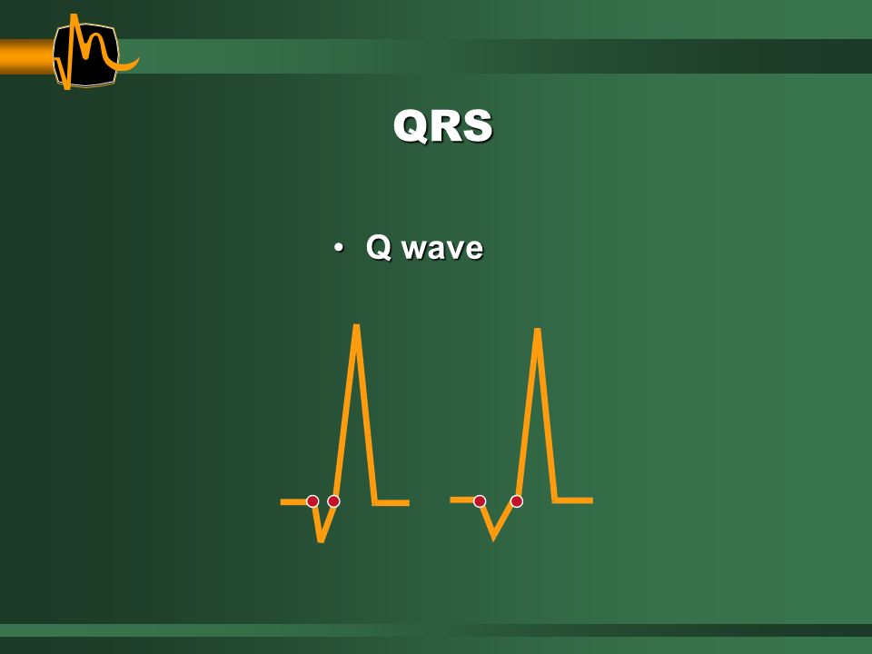 QRS Q wave. When a Q wave is noted in any lead, always measure its width. Red dots indicate where the Q wave is measured.