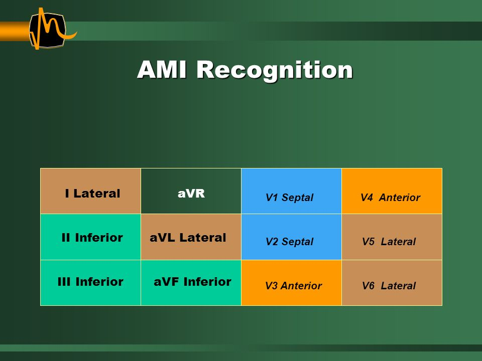 AMI Recognition I Lateral aVR II Inferior aVL Lateral III Inferior