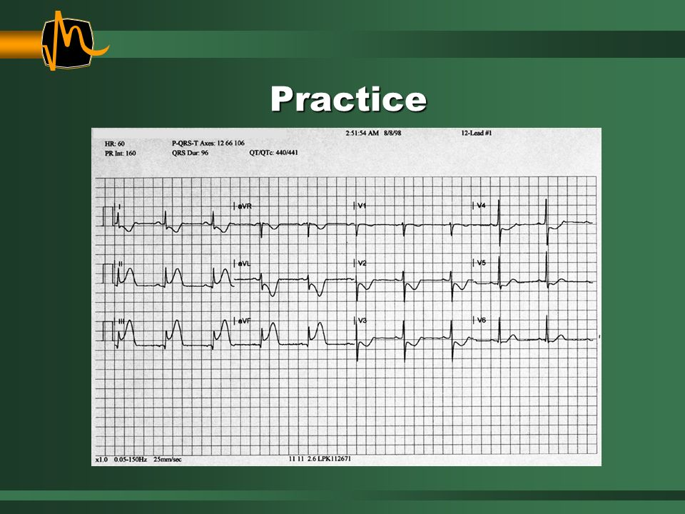 Practice Instructions: Review the 12-lead ECG .