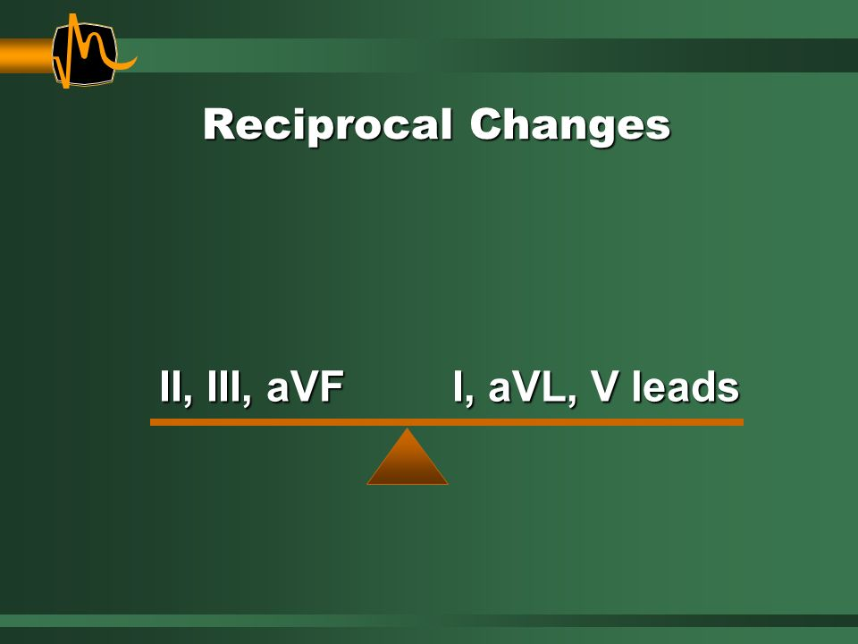 Reciprocal Changes II, III, aVF I, aVL, V leads
