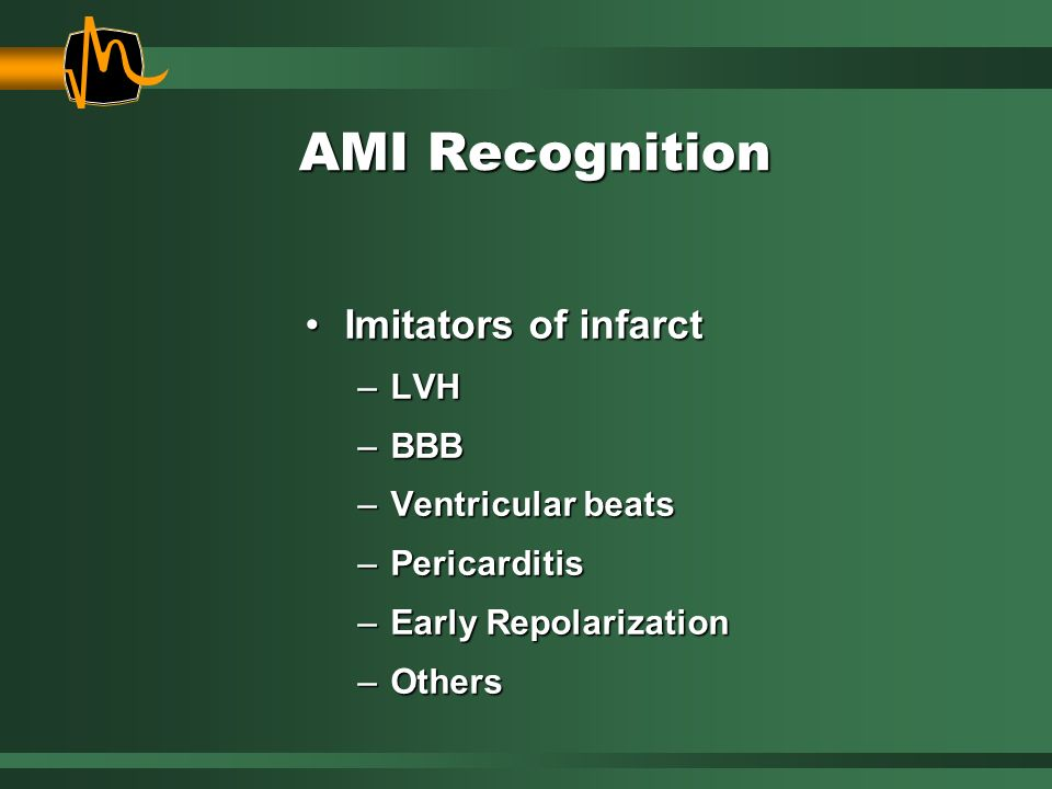 AMI Recognition Imitators of infarct LVH BBB Ventricular beats