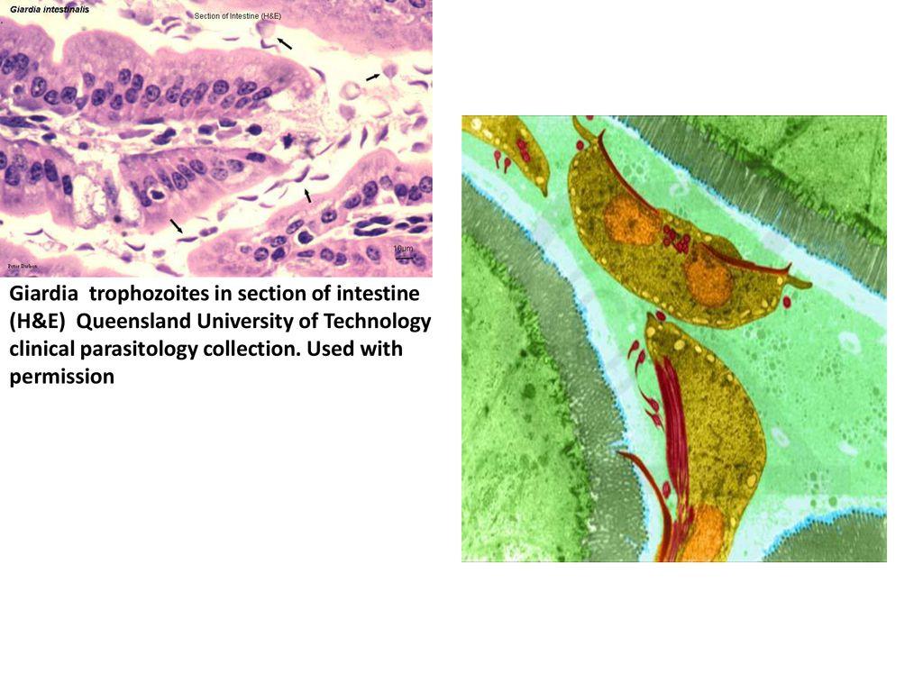 tisztítás a paraziták után Az Ascaris kapcsolódási szervei