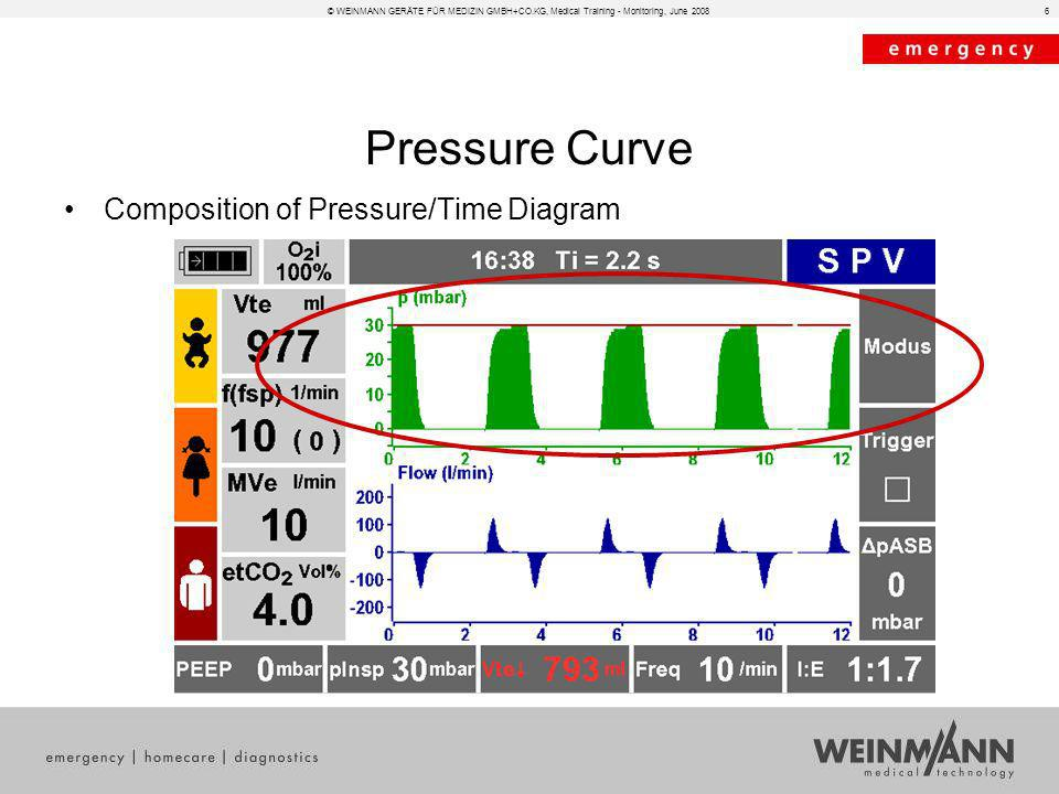 Pressure Curve Composition of Pressure/Time Diagram