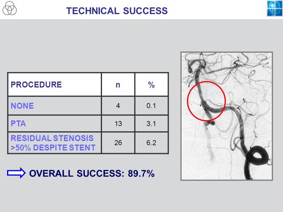 TECHNICAL SUCCESS OVERALL SUCCESS: 89.7% PROCEDURE n % NONE PTA