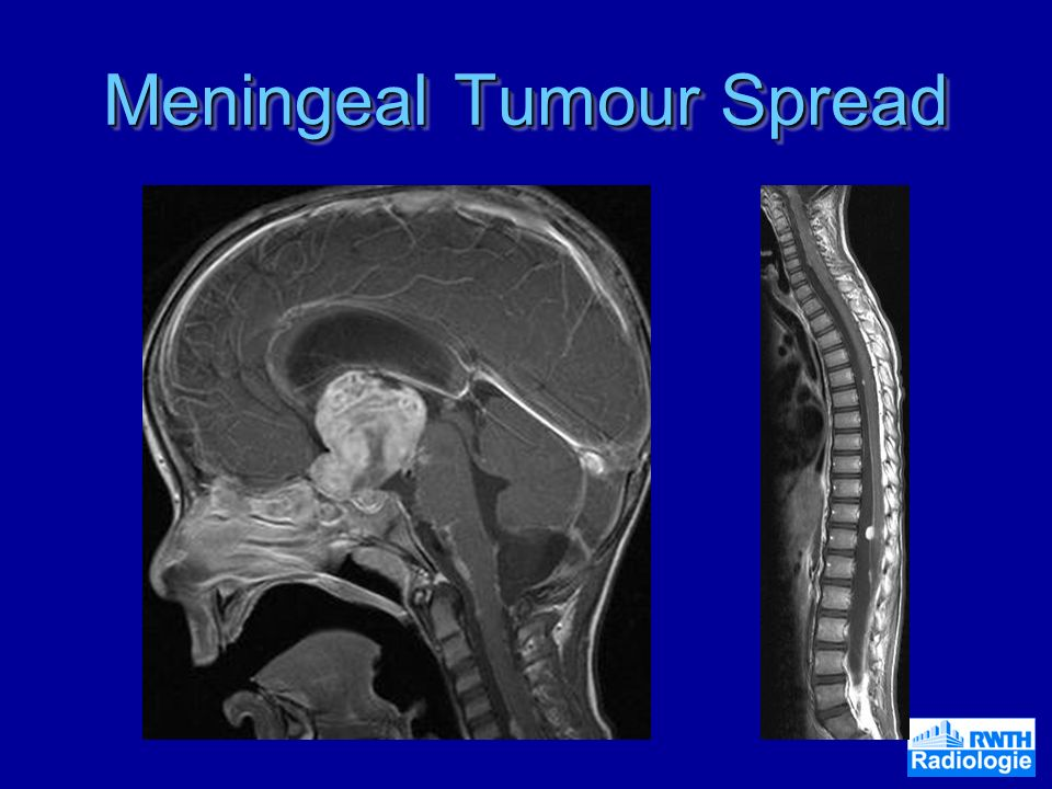 Meningeal Tumour Spread
