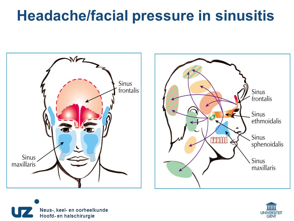 Sinus infection causing facial paralysis — photo 12