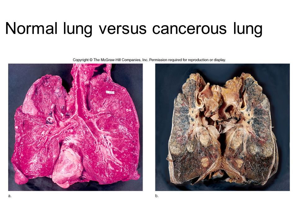 Normal lung versus cancerous lung