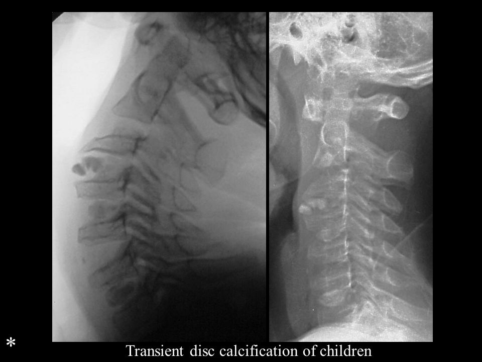 * Transient disc calcification of children