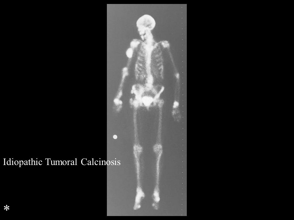Idiopathic Tumoral Calcinosis