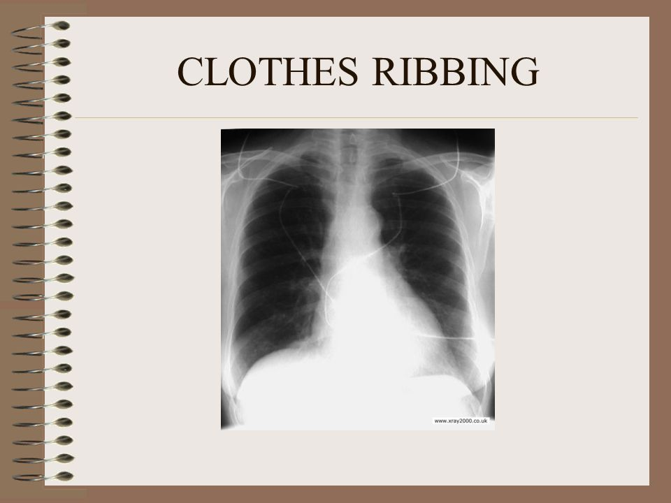 CLOTHES RIBBING