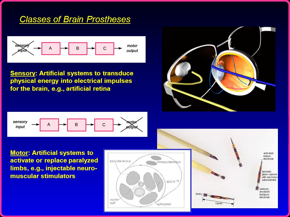 Classes of Brain Prostheses