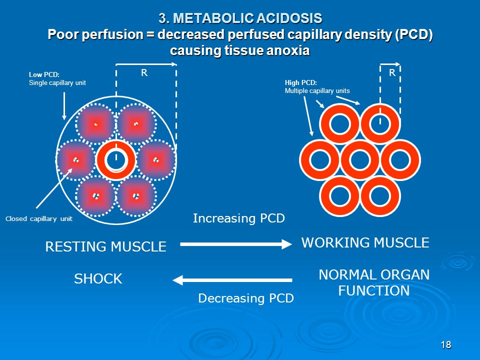 3. METABOLIC ACIDOSIS Poor perfusion = decreased perfused capillary density (PCD) causing tissue anoxia