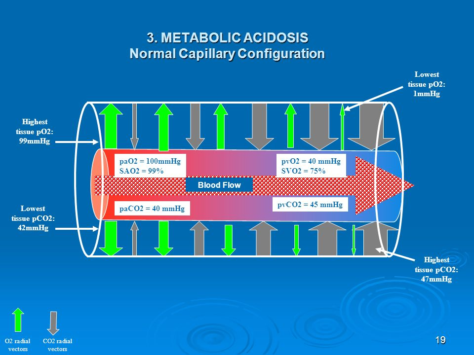 3. METABOLIC ACIDOSIS Normal Capillary Configuration