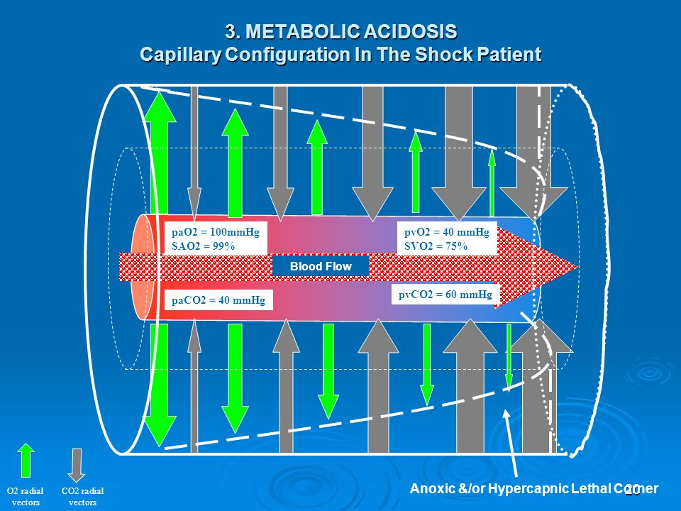 3. METABOLIC ACIDOSIS Capillary Configuration In The Shock Patient