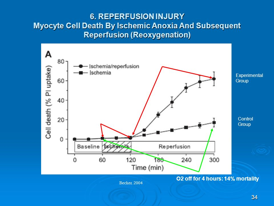 6. REPERFUSION INJURY Myocyte Cell Death By Ischemic Anoxia And Subsequent Reperfusion (Reoxygenation)