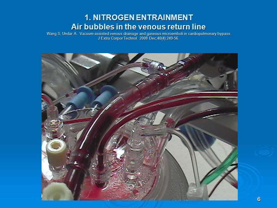 1. NITROGEN ENTRAINMENT Air bubbles in the venous return line Wang S, Undar A . Vacuum-assisted venous drainage and gaseous microemboli in cardiopulmonary bypass. J Extra Corpor Technol. 2008 Dec;40(4):249-56.
