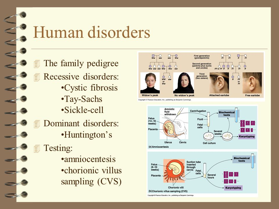 Human disorders The family pedigree