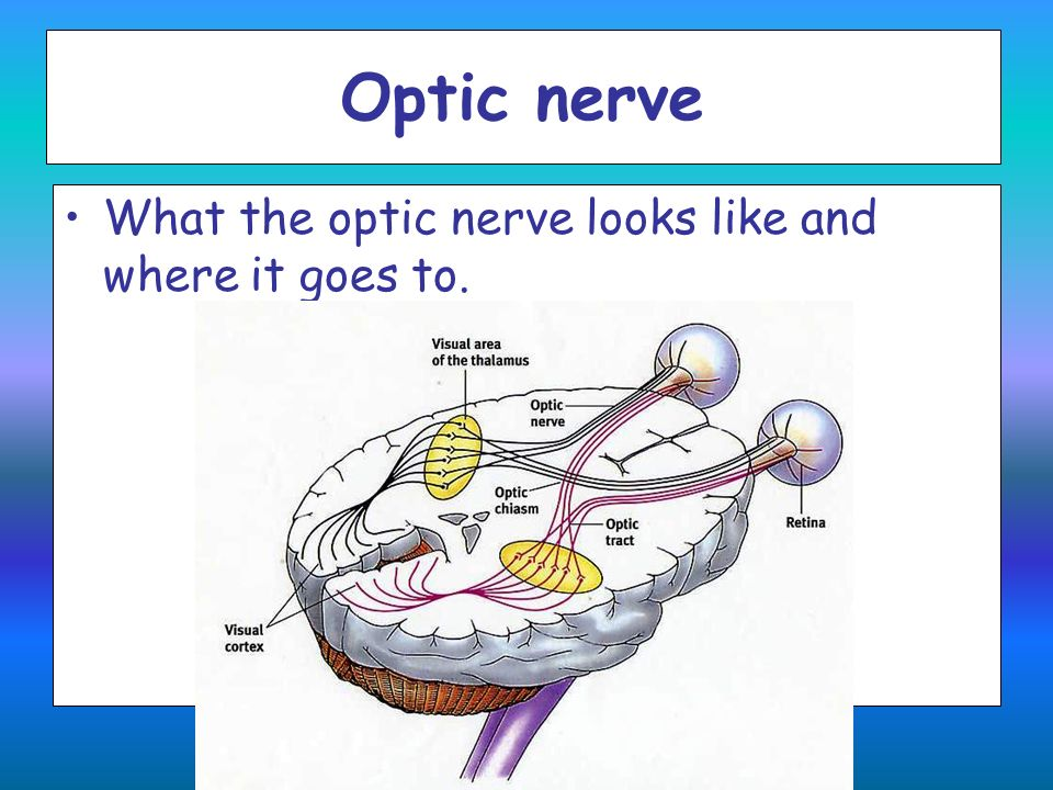 Optic nerve What the optic nerve looks like and where it goes to.