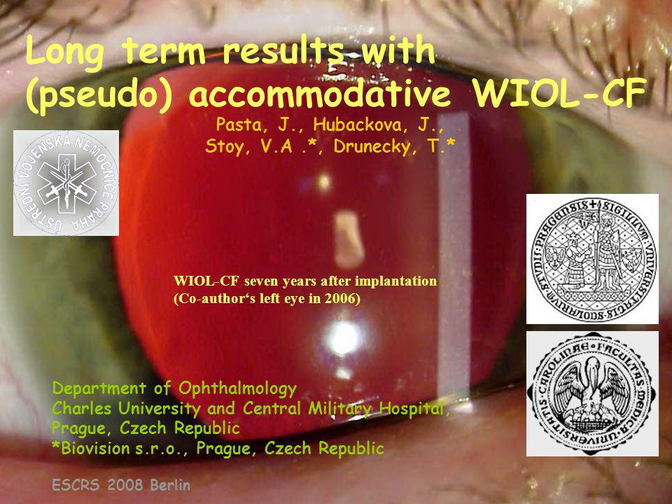 Long term results with (pseudo) accommodative WIOL-CF
