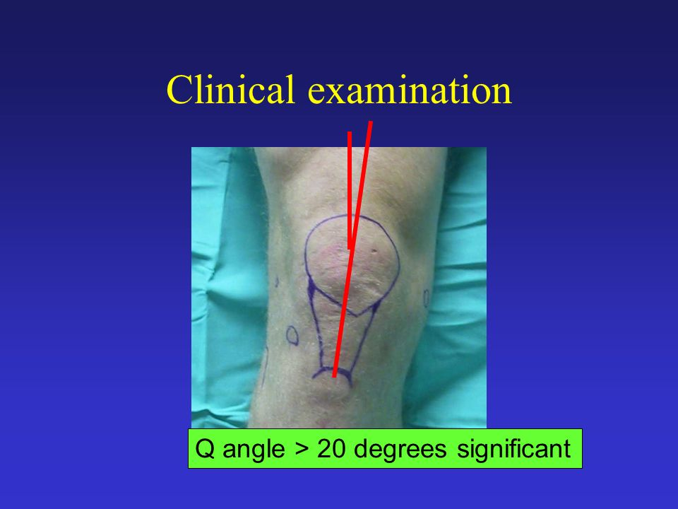 Clinical examination Q angle > 20 degrees significant