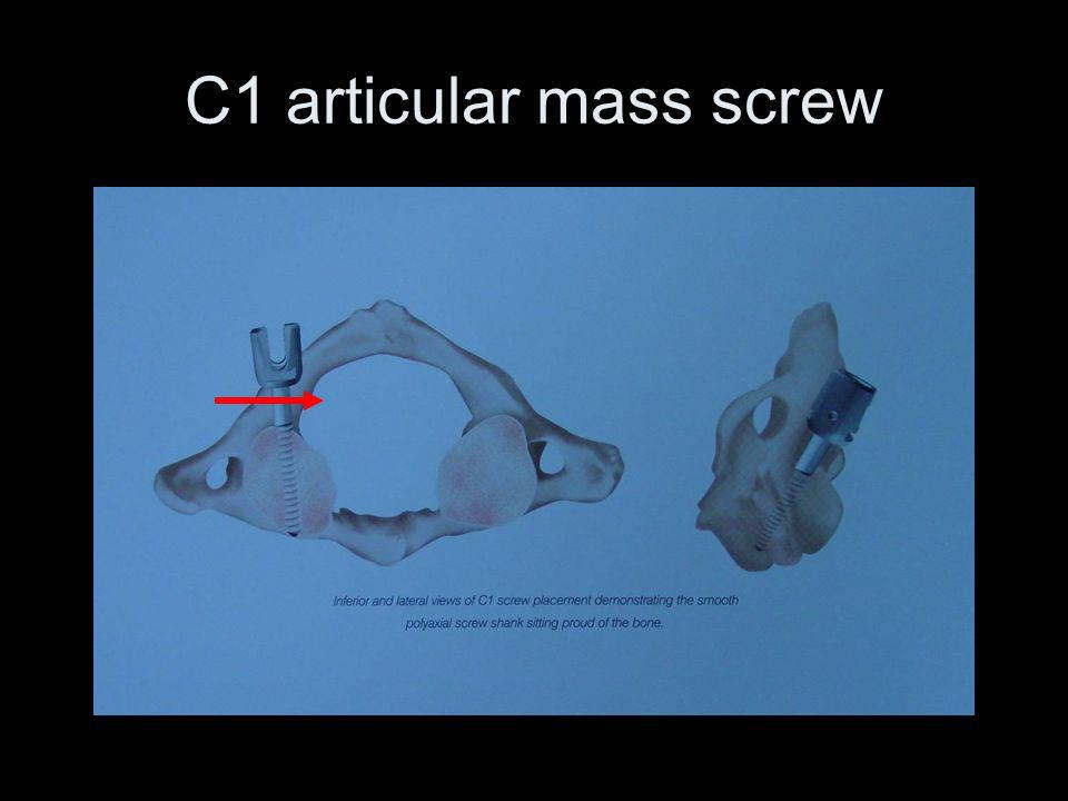 C1 articular mass screw