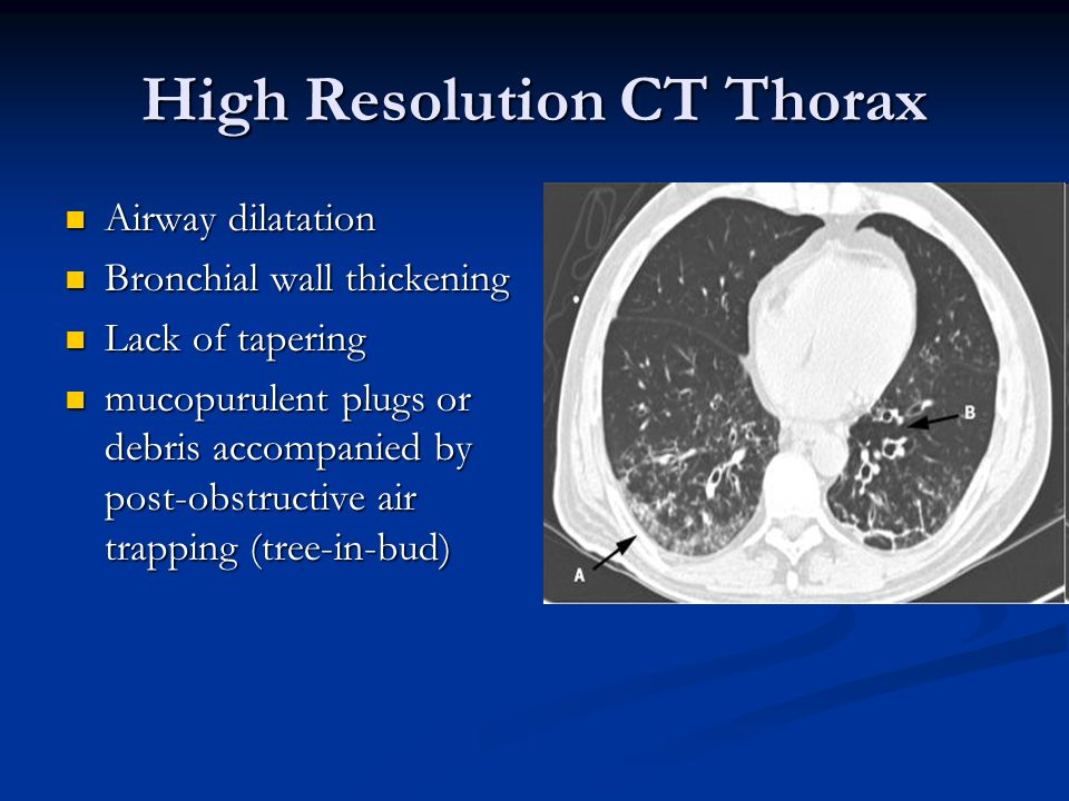 High Resolution CT Thorax